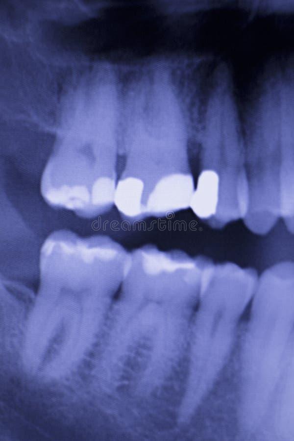 Зубоврачебные зубы заполняя развертку рентгеновского снимка дантистов стоковые изображения