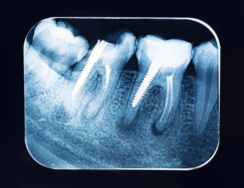 Зубоврачебные зубы рентгеновского снимка с зубоврачебной осью стоковые фото