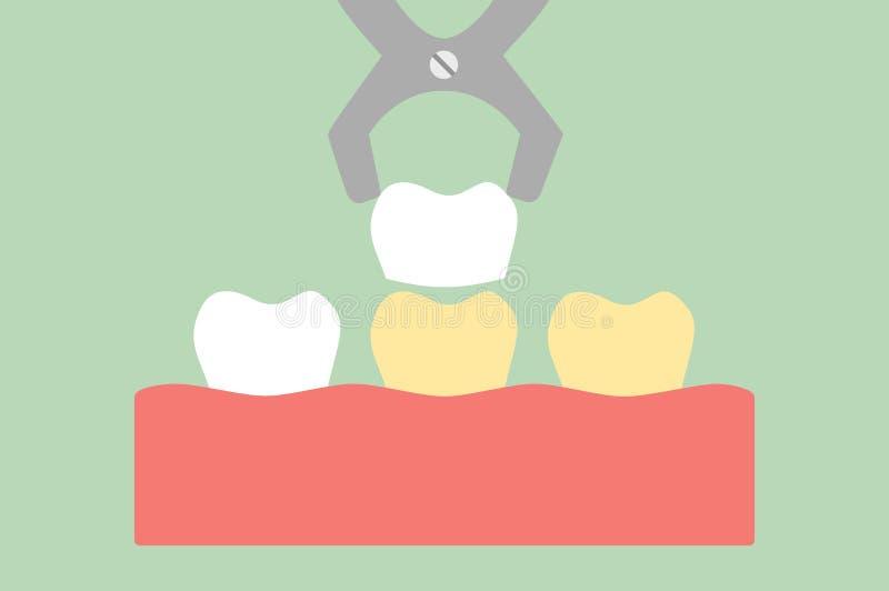 Зубоврачебные облицовки - забеливать зуба иллюстрация штока