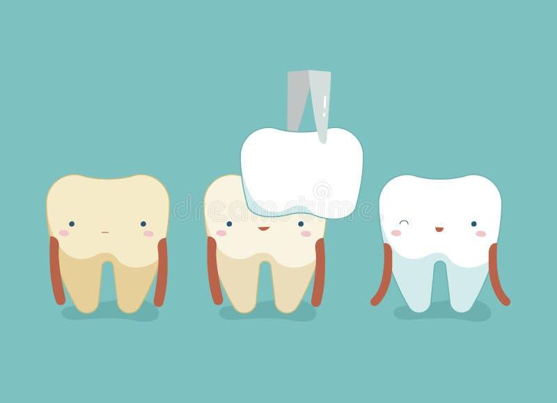 Зубоврачебные облицовки, зубы и концепция зуба зубоврачебного иллюстрация штока