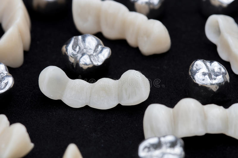 Зубоврачебные серебряные кроны зуба металла и мосты керамических или циркония зуба на темной черноте отделывают поверхность стоковые фотографии rf