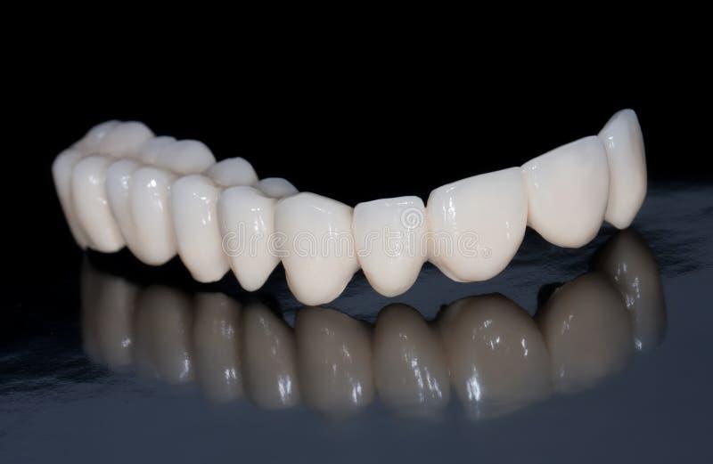 Зубоврачебный мост стоковое изображение rf