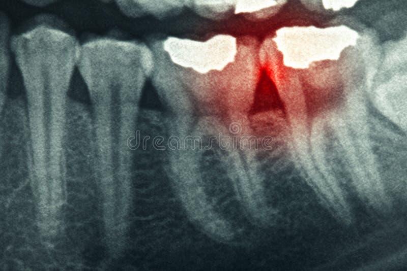 Зубоврачебный рентгеновский снимок стоковое фото