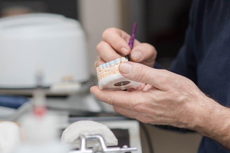 Зубоврачебный техник работая на модели гипсолита каменной с применяться моста и крон циркония керамический стоковые изображения rf