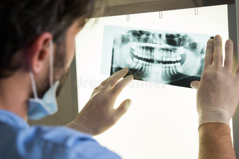 зубоврачебный луч x стоковые фотографии rf