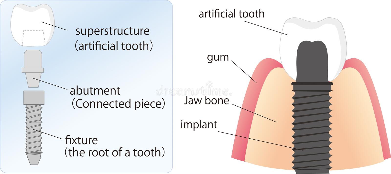 зубоврачебный implant иллюстрации иллюстрация штока