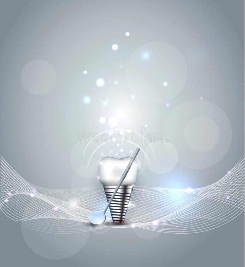 зубоврачебным белизна взгляда элементов изолированная implant иллюстрация вектора