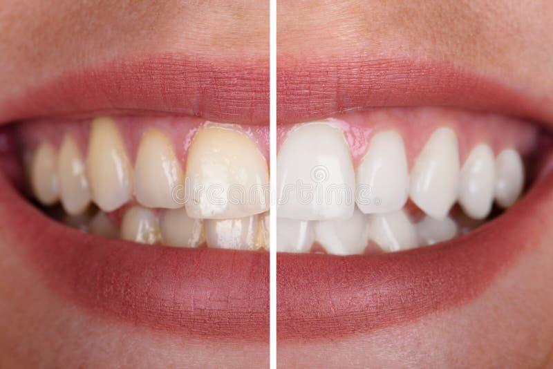 Зубы женщины перед и после забеливать стоковые фото