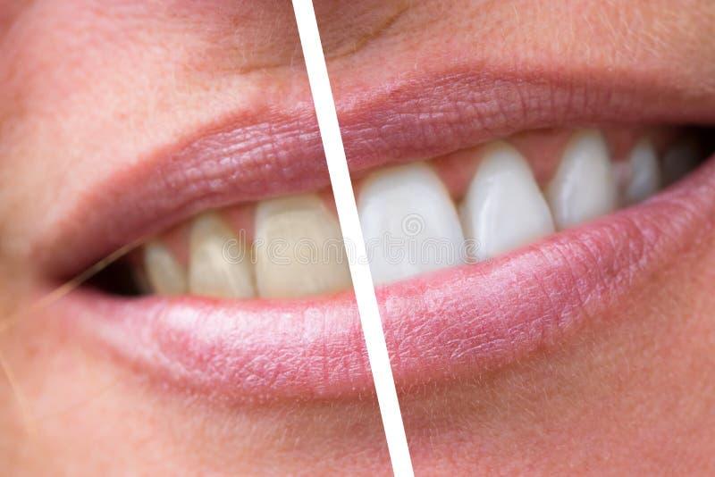 Зубы женщины перед и после забеливать стоковые изображения