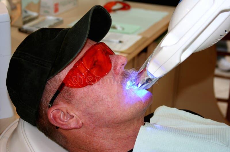 зубы забеливая стоковые фотографии rf
