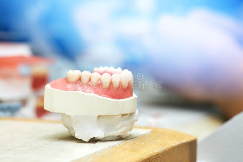 Зубы зубоврачевания белые ручно Челюсть человека стоковые фото