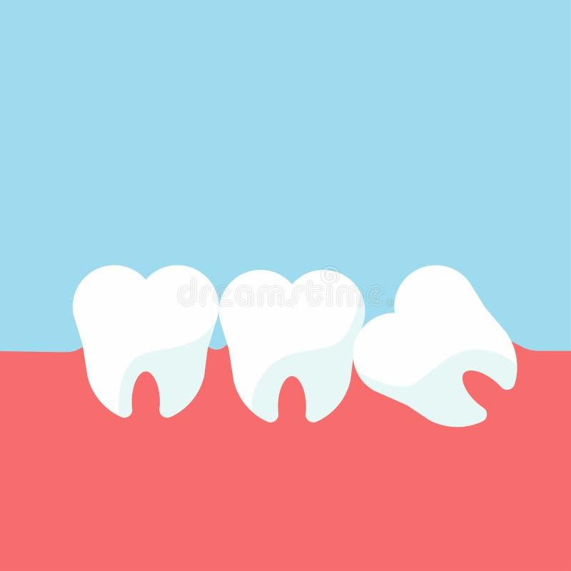 Зубы и проблемы камеди Плотно сжатый зуб мудрости для зубоврачевания и стоматологической хирургии в плоской иллюстрации вектора с бесплатная иллюстрация