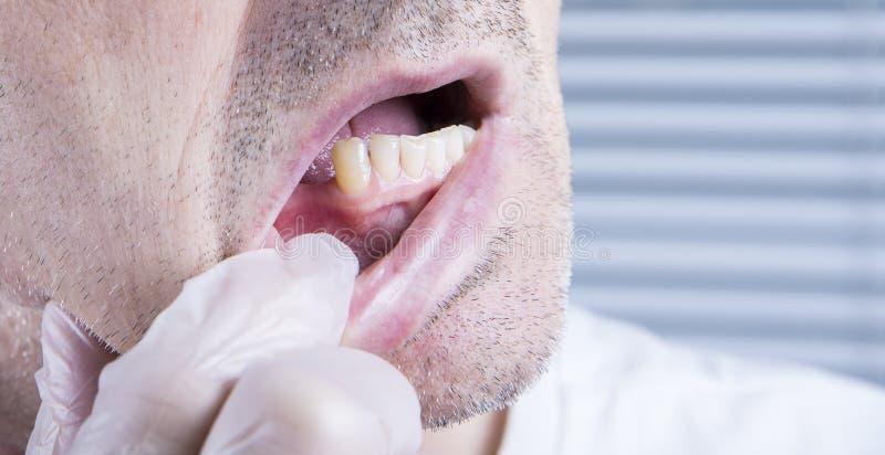 Зубы крупного плана, зубоврачебная клиника здравоохранения с отсутствующим зубом стоковые фотографии rf