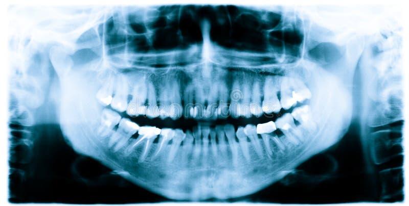 зубы луча изображения x стоковое изображение