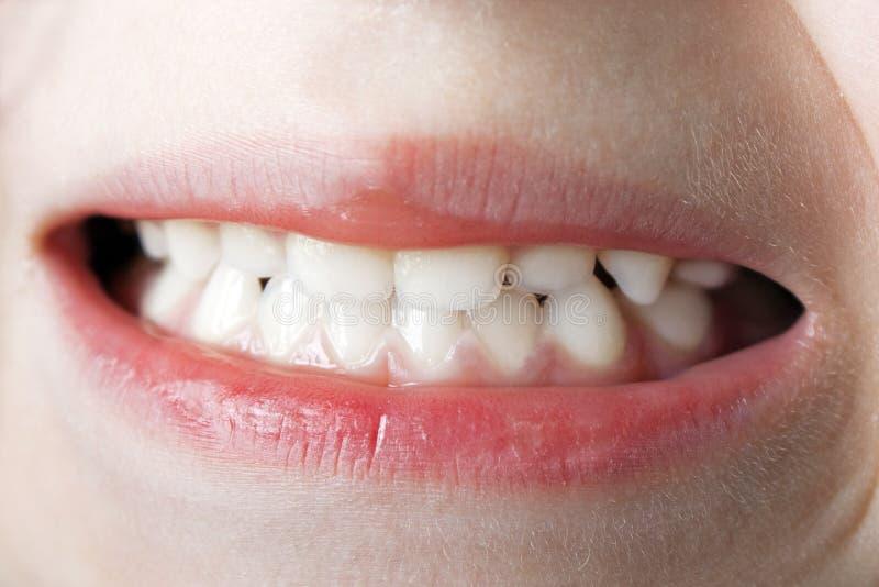 зубы макроса стоковые фото