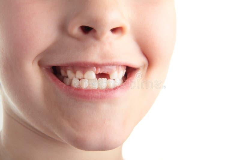 зубы младенца стоковая фотография