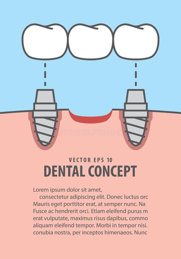 Зубы мостов плана имплантируют вектор иллюстрации на голубом backgro иллюстрация вектора