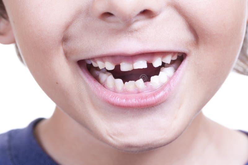 Зубы младенца стоковое фото