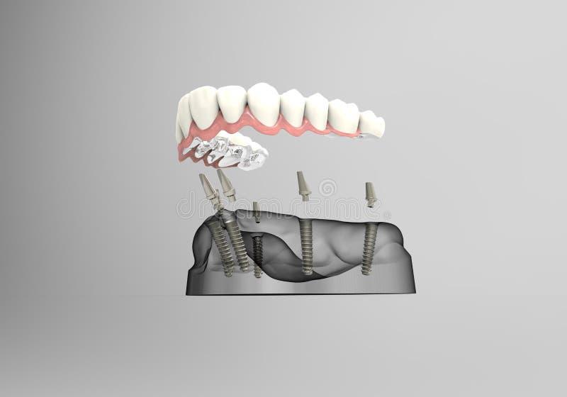 зубы перевода 3D иллюстрация вектора