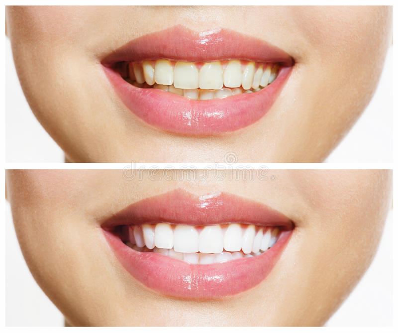 Зубы перед и после забеливать стоковые фото
