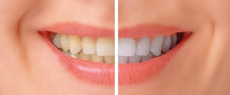 Зубы перед и после забеливать стоковое фото rf