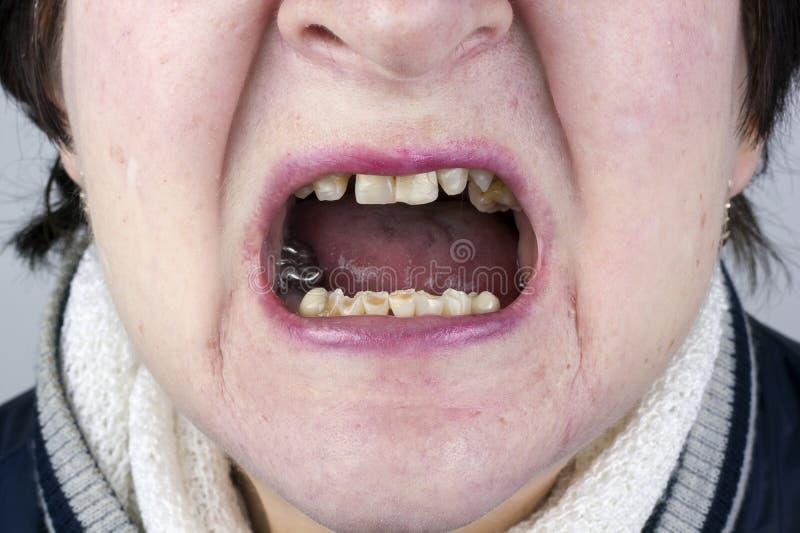 Зубы разрушенной женщины стоковое изображение