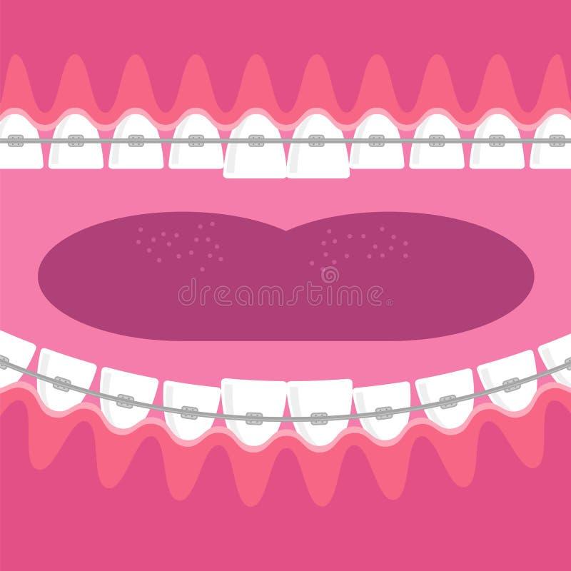 Зубы расчалок Предпосылка зубоврачебной заботы Ортодонтическая обработка Рот отверстия мультфильма иллюстрация вектора