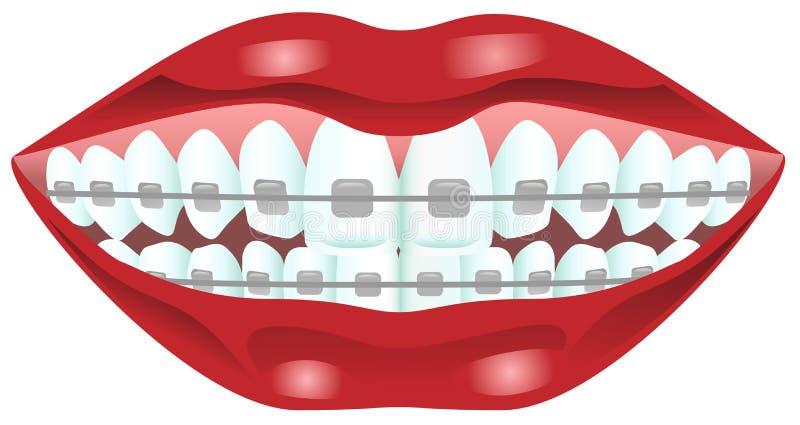 Зубы с расчалками иллюстрация вектора
