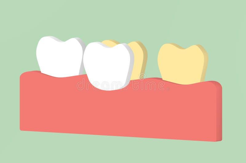 Зуб забеливая зубами облицовок иллюстрация вектора