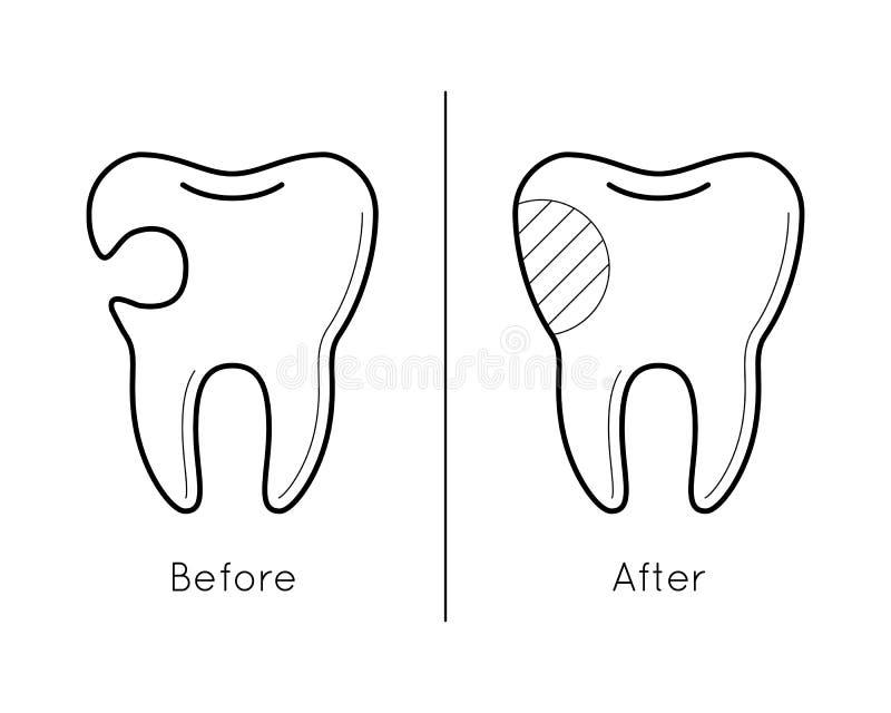 Зуб перед и после костоедой бесплатная иллюстрация
