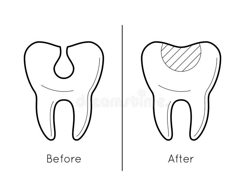 Зуб перед и после костоедой иллюстрация вектора