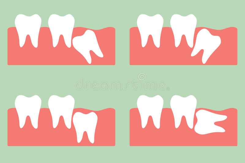 Зуб премудрости иллюстрация вектора