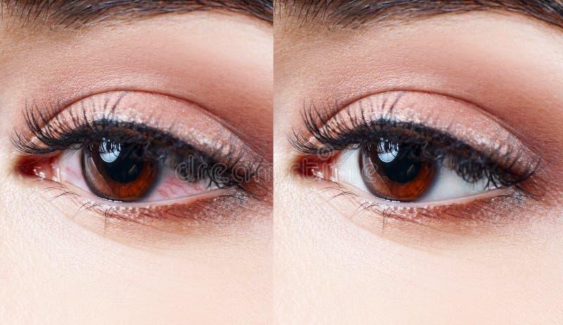 Зудящий и раздражанный красный женский глаз стоковые изображения rf