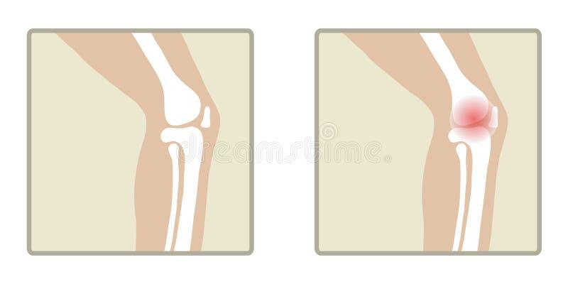 Здоровое и больное колено бесплатная иллюстрация
