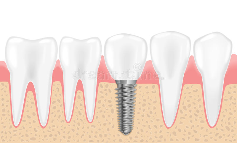 Здоровые зубы и зубной имплантат Реалистическая иллюстрация вектора зубоврачевания зуба медицинского Человеческие зубы зубоврачеб иллюстрация штока
