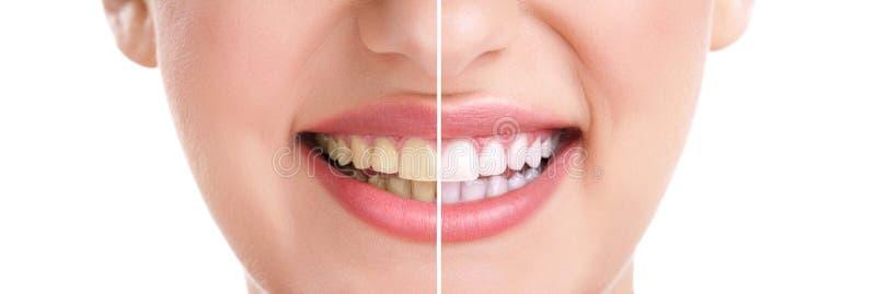 Здоровые зубы и улыбка стоковое фото rf