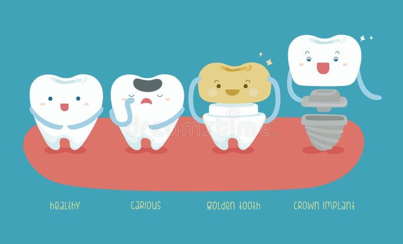 Здоровый зуб зуба, кариозных, золотых и чертенок кроны иллюстрация штока