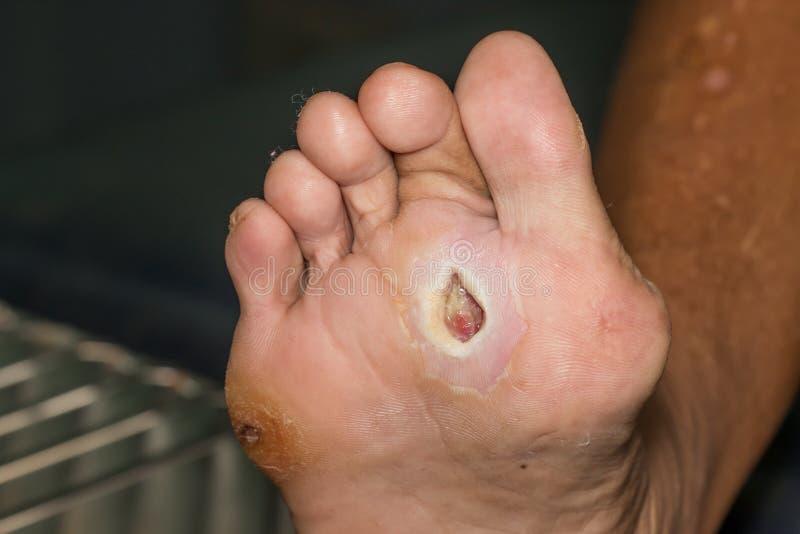 диабетическая нога стоковые фото