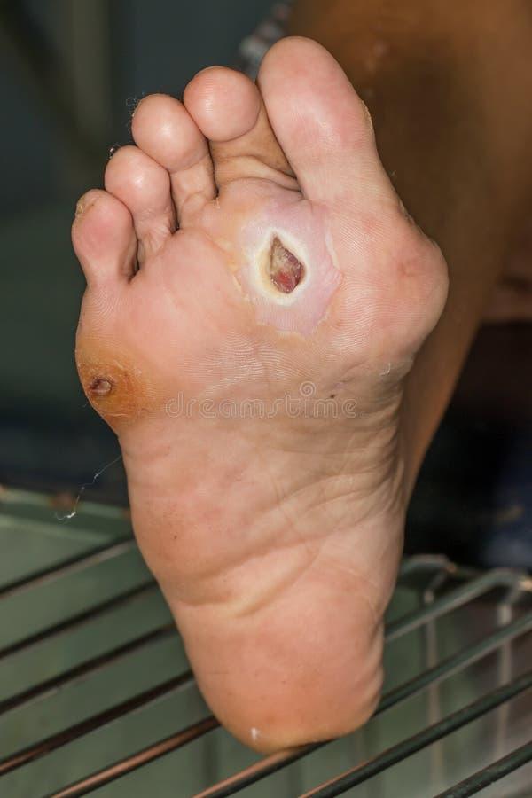 диабетическая нога стоковое фото rf