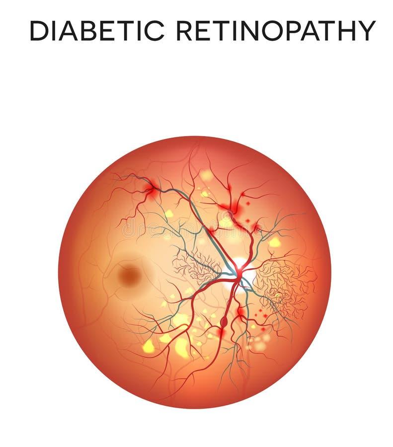диабетический retinopathy бесплатная иллюстрация