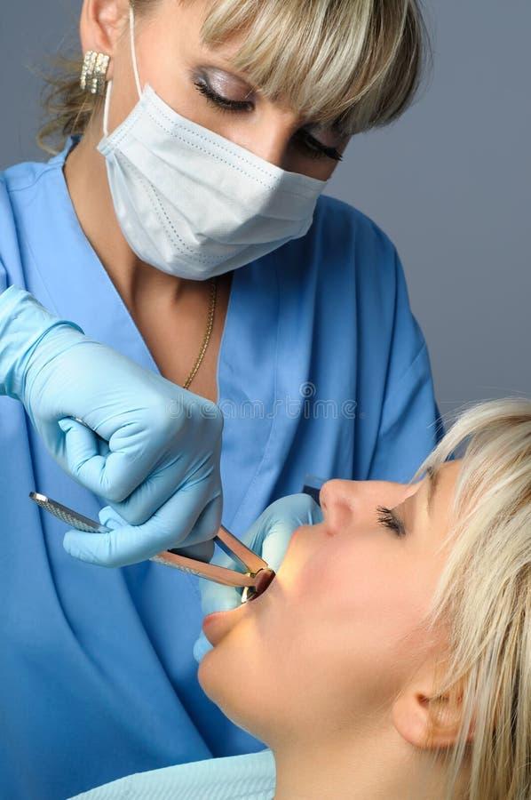 Извлечение зуба стоковое фото