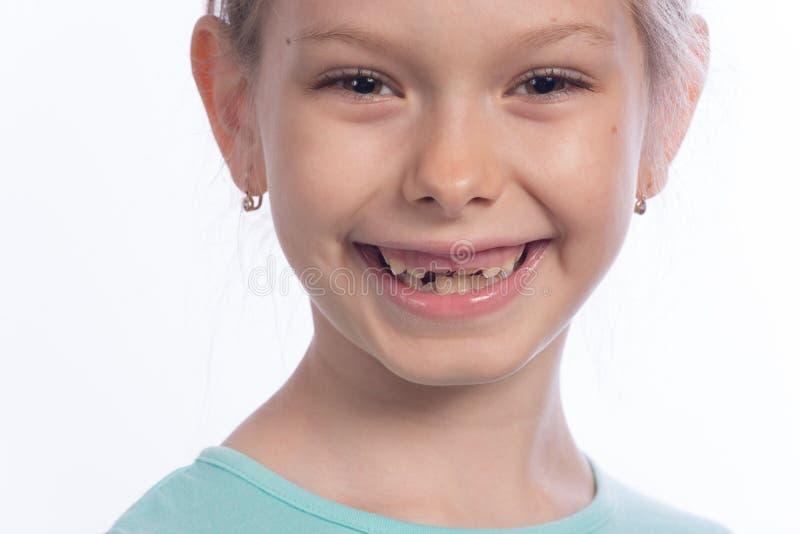 Изменяя зубы стоковое фото rf