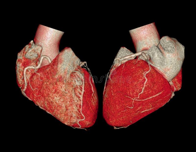 Изображение перевода коронарной артерии 3D CTA бесплатная иллюстрация
