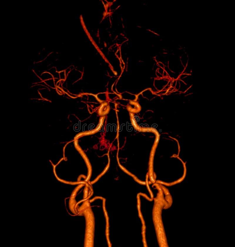 изображение перевода 3d сосуд мозга бесплатная иллюстрация