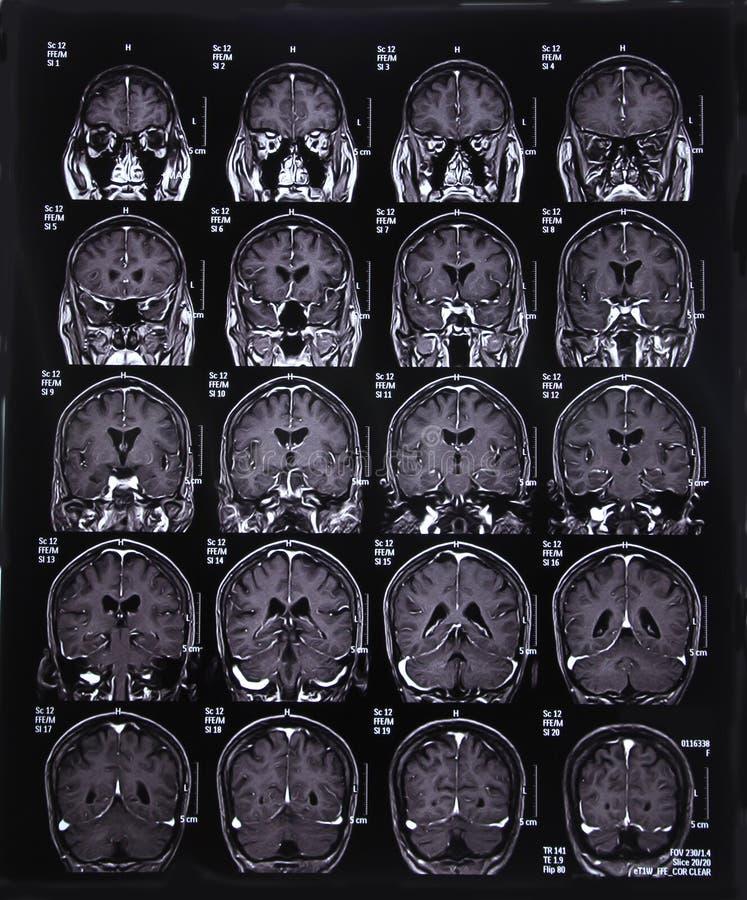 Изображение развертки MRI мозга стоковое изображение rf