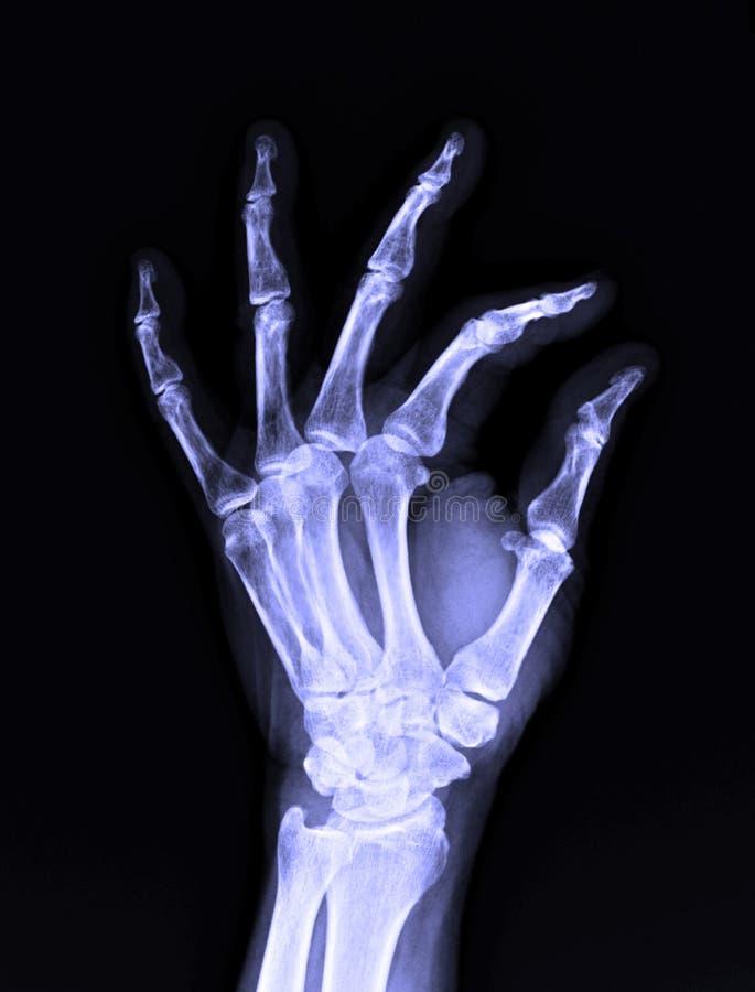 Изображение рентгеновского снимка мужской человеческой левой руки стоковое изображение rf
