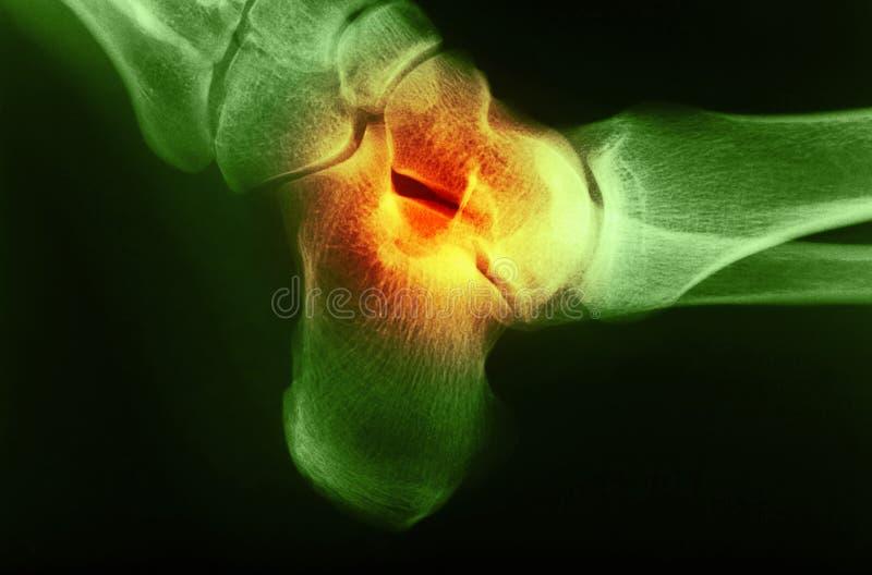 Изображение рентгеновского снимка соединения ноги человека стоковая фотография rf
