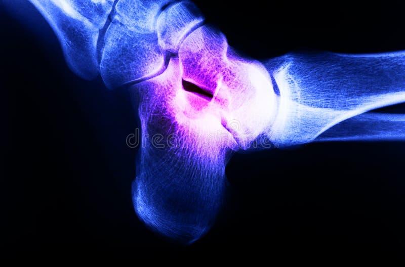 Изображение рентгеновского снимка соединения ноги человека стоковое изображение rf