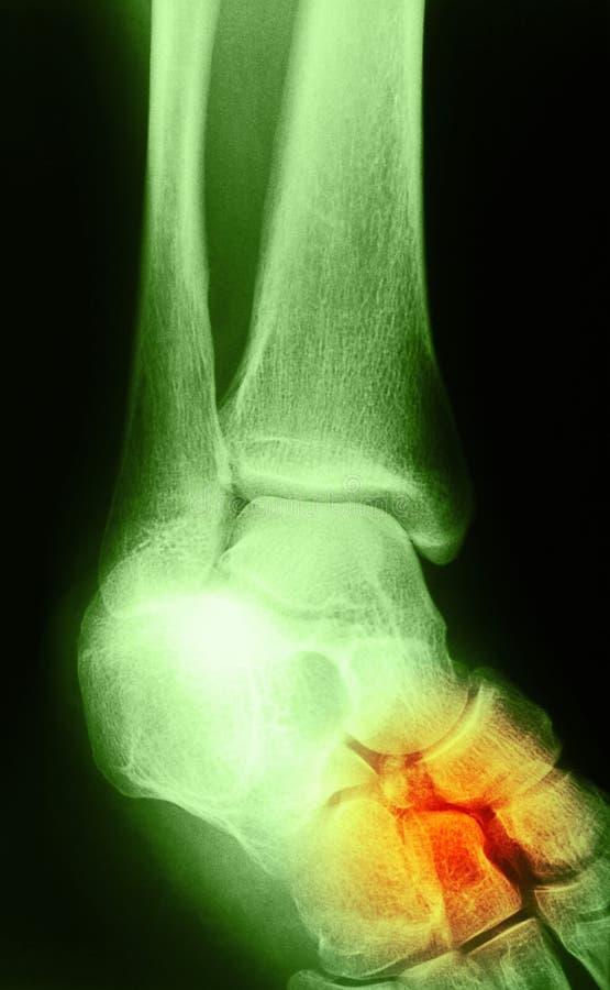 Изображение рентгеновского снимка соединения ноги человека стоковые изображения