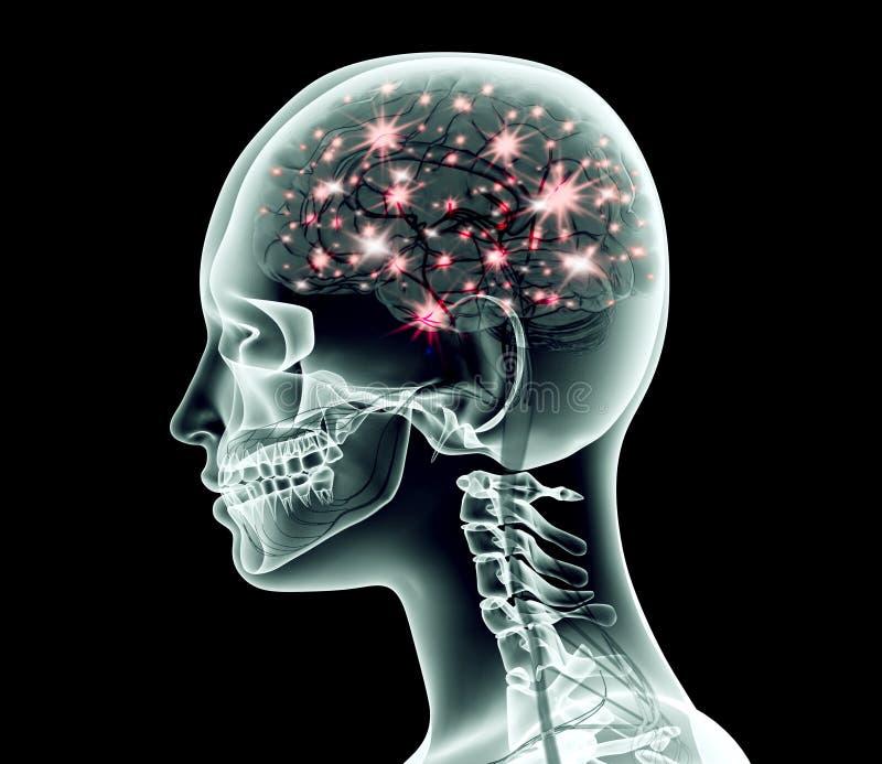 Изображение рентгеновского снимка человеческой головы с мозгом и электрическими ИМПами ульс бесплатная иллюстрация